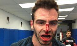 Оливье Бускет победил Джэй-Си Альварадо в бое MMA
